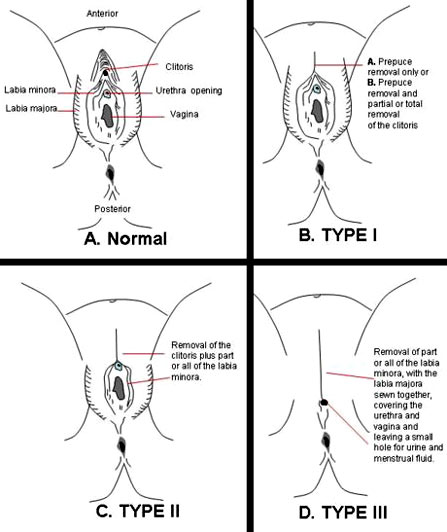 Different types of womans vagina